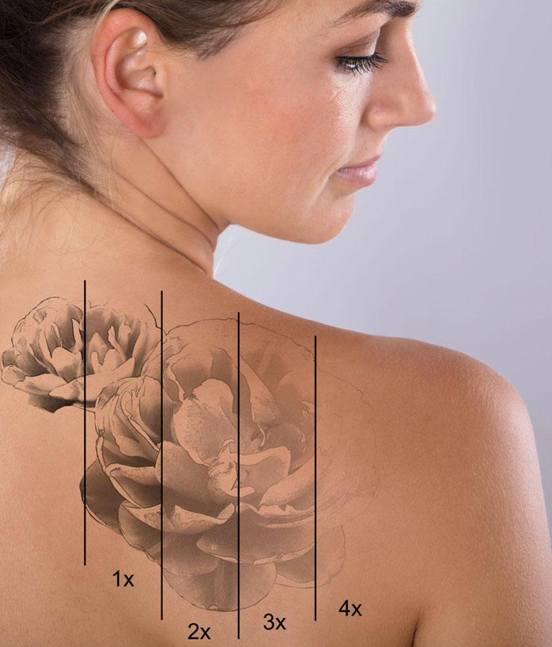 de-tatouer-sans-douleur